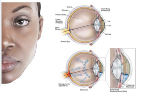 Glaucoma and what to look out for…