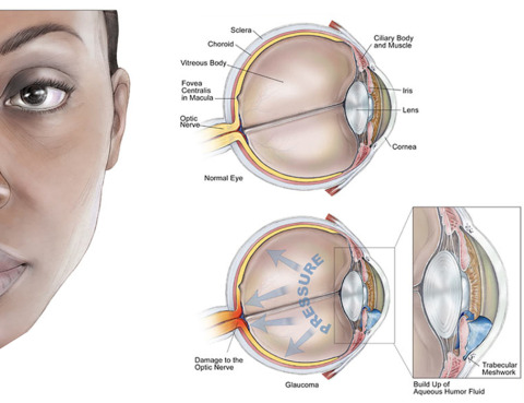 Glaucoma and what to look out for