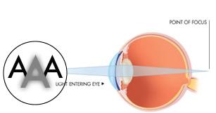 Presbyopic Eye
