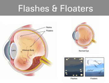 What are Flashes and Floaters