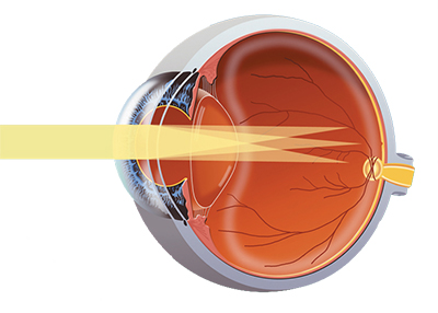 Astigmatism Guide from Blink Opticians